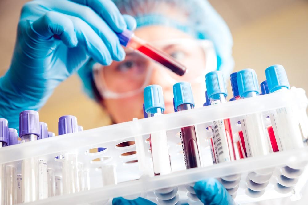 Гемоглобин 122 у мужчины
